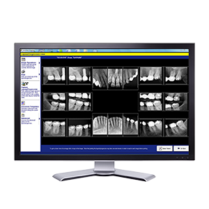 Digital Dental Xrays in Charlottle NC