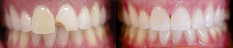 Before and After Teeth Veneers in Charlotte, NC