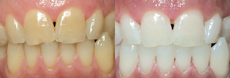 Before and After Professional Teeth Whitening in Charlotte, NC