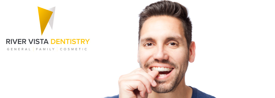 guy putting in clear aligners as alternative to metal braces