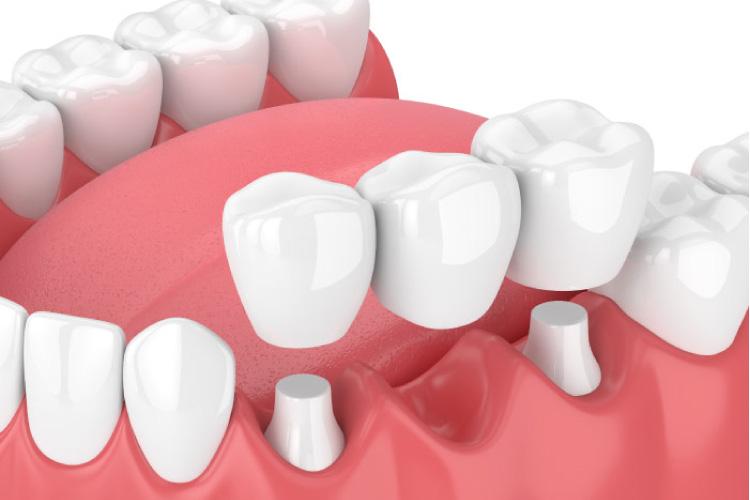model of dental implants with a bridge